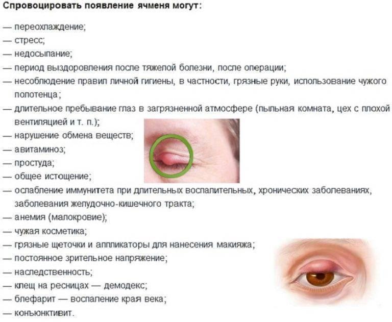 Ячмень на глазу: лечение при грудном вскармливании, чем лечить?