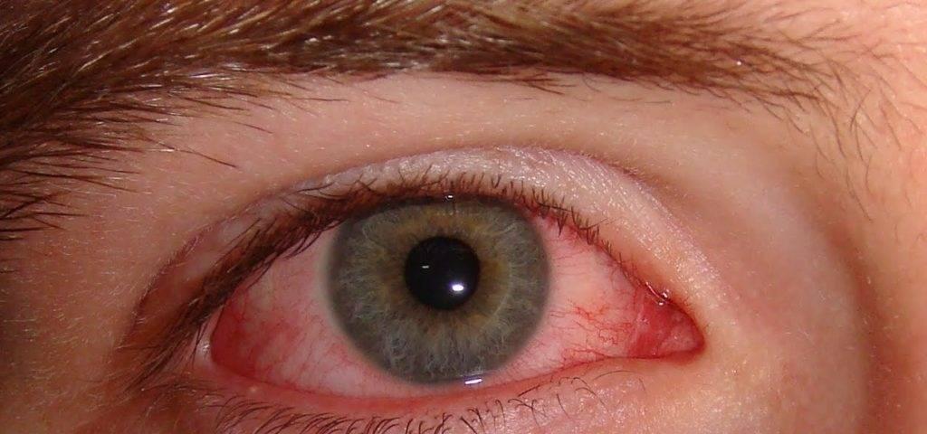 хламидиоз глаз симптомы