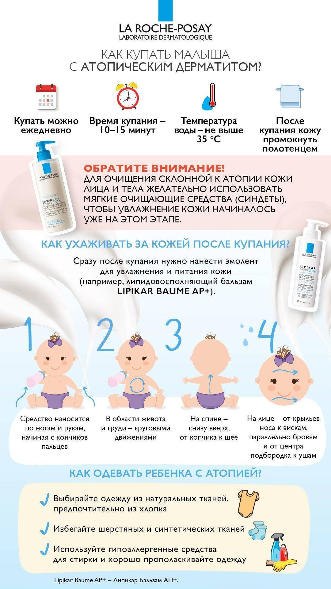 можно ли делать прививки при атопическом дерматите