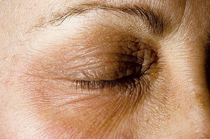 Псориаз век: симптомы и лечение