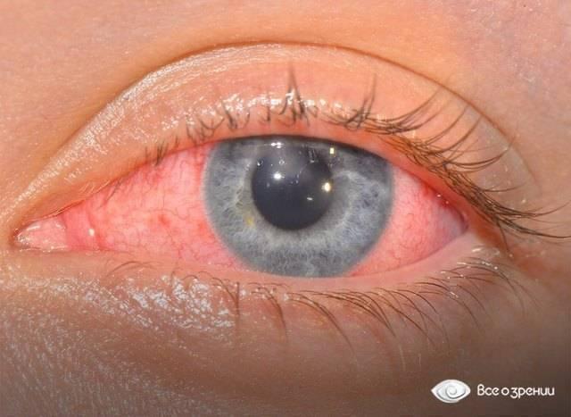 Песок в глазах, симптомы, лечение, признаки, причины.