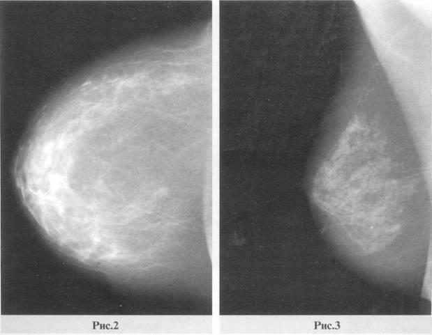 маммография инволютивные изменения что это