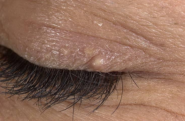 белые пятна под глазами