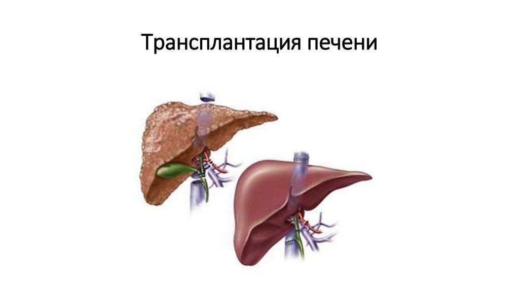 Трансплантация печени — википедия с видео // wiki 2
