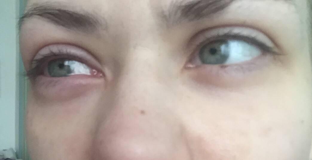При моргании болит глаз внизу