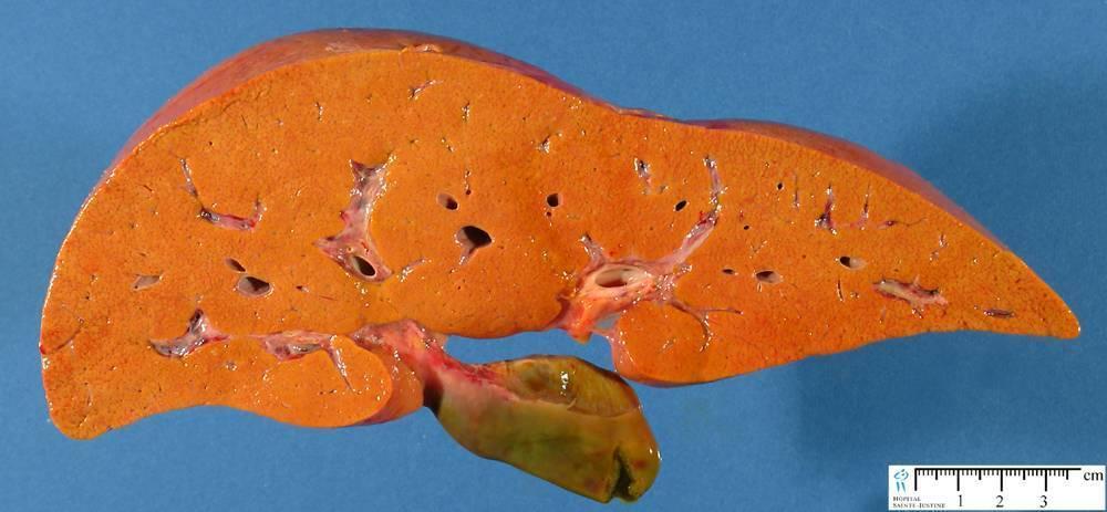признаки стеатоза печени