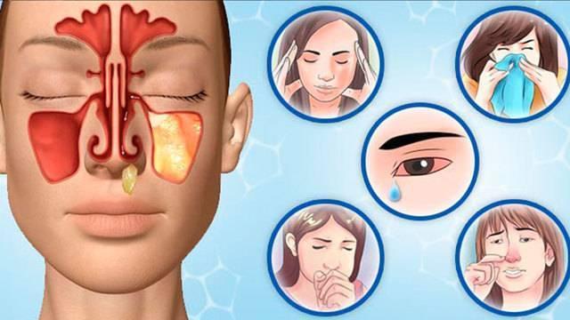 хронический этмоидит лечение