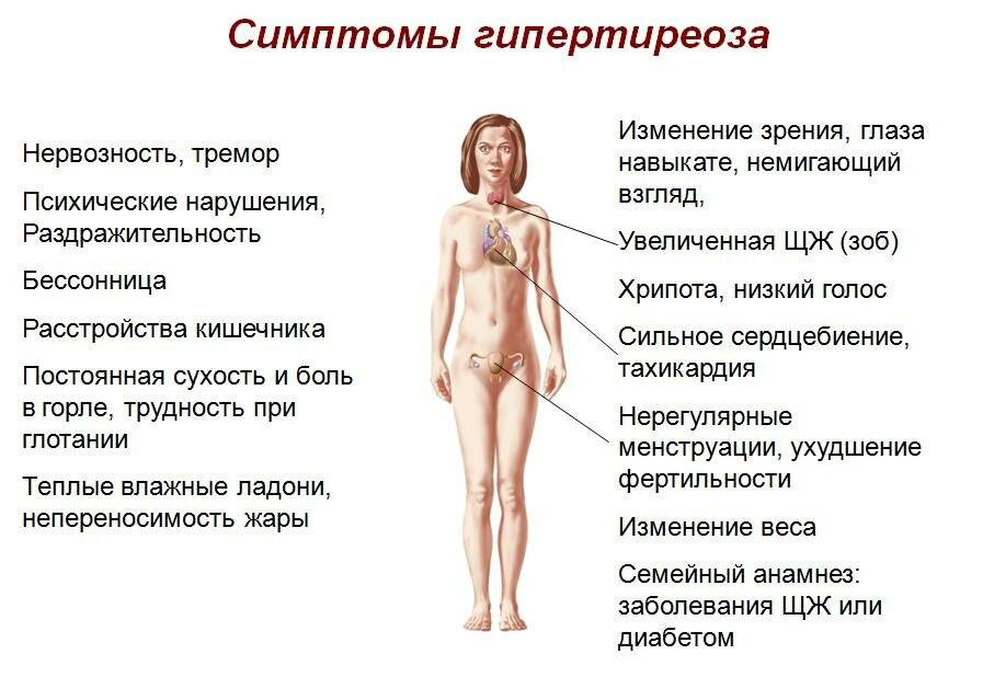 Симптомы, диагностика и лечение тиреотоксикоза