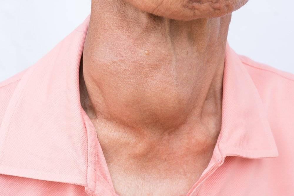 Как проявляются заболевания щитовидной железы: симптомы и последствия
