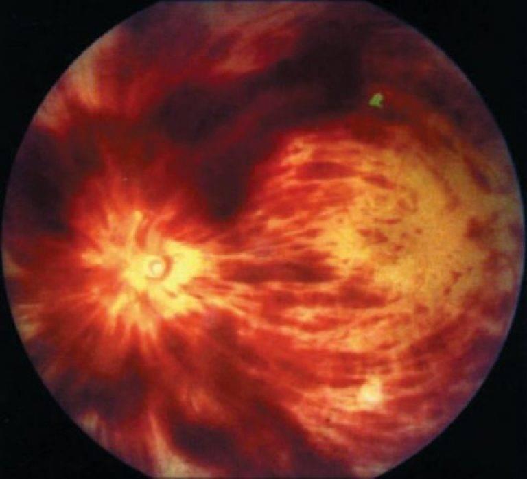 Что такое тромбоз центральной вены сетчатки и как его лечить?