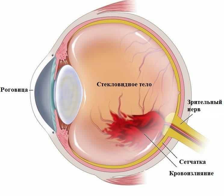 роговица глаза повреждение