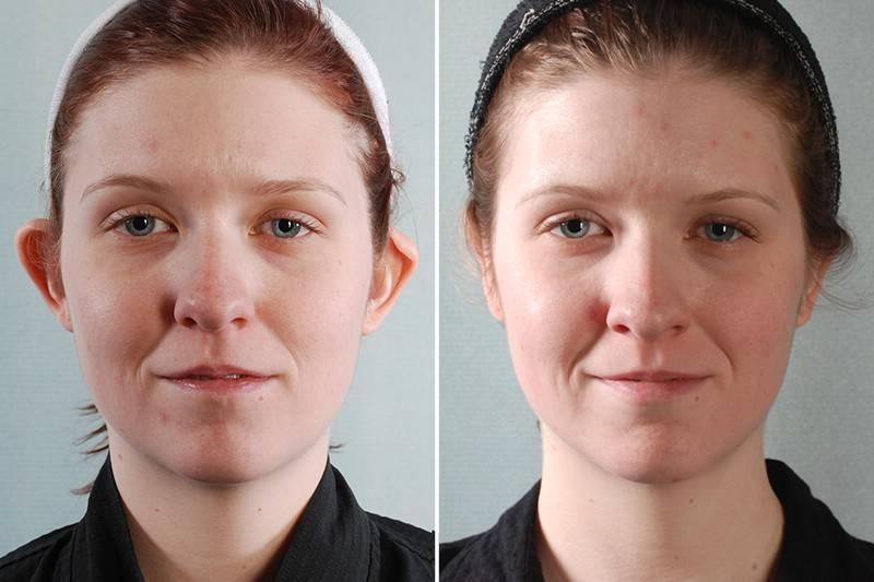 оттопыренные уши как избавиться без операции