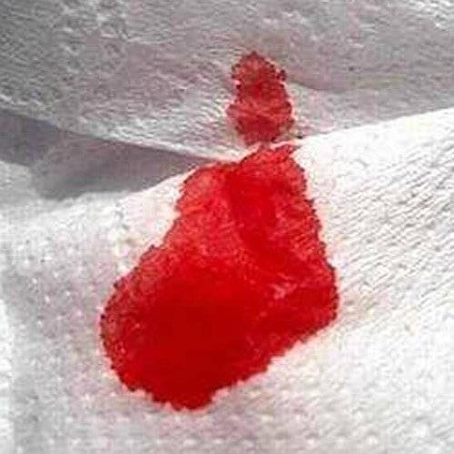 Кровотечения при геморрое: что делать, быстрая остановка крови после дефекации