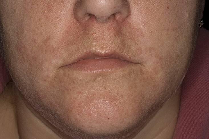 Лечение периорального (околоротового) дерматита | derma-expert.ru