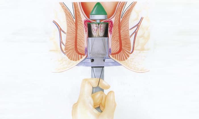Оперативное лечение геморроя по методу миллигана моргана