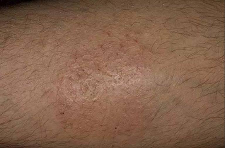 Чесотка на нервной почве: симптомы и лечение зуда кожи