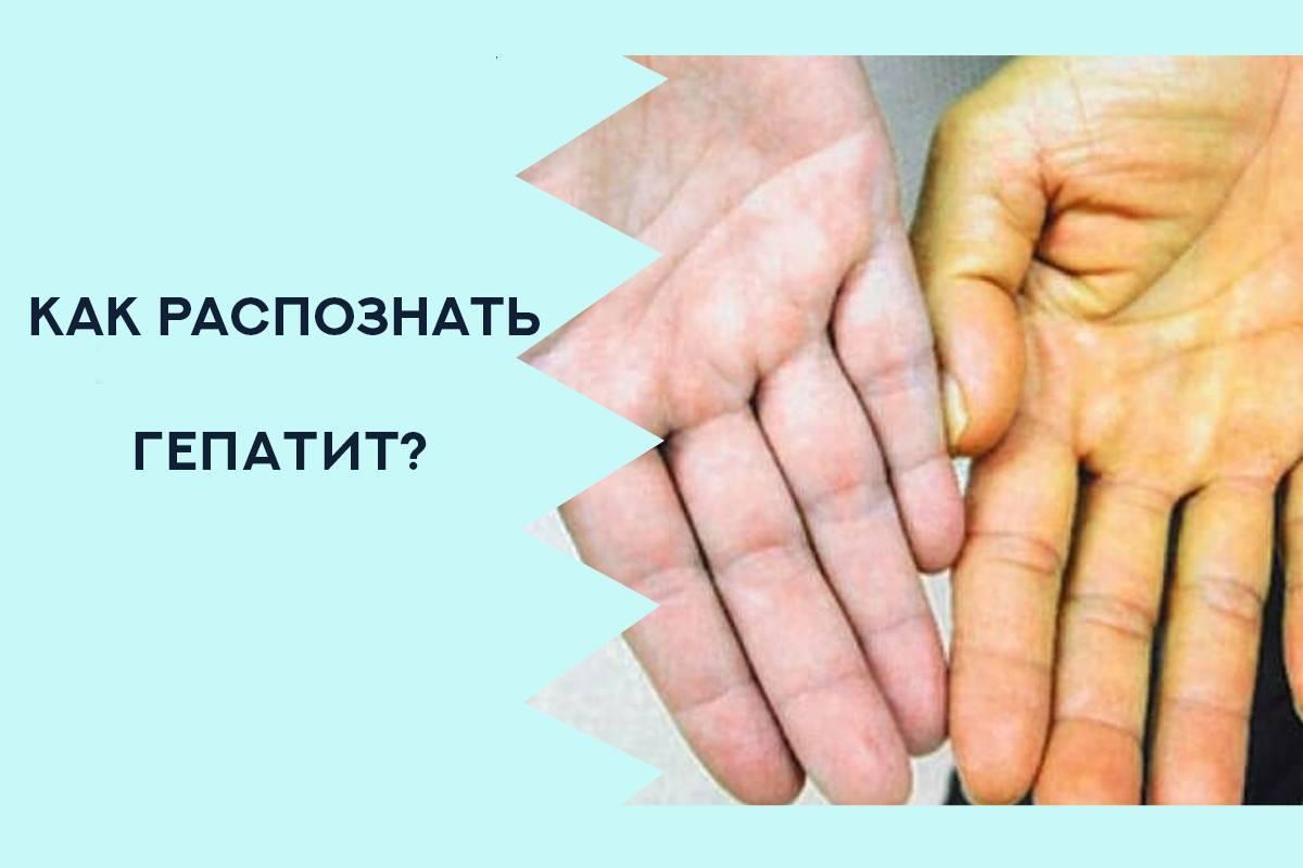 гепатит с симптомы у женщин