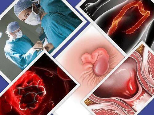 Тромбэктомия геморроидального узла: что это? последствия операции