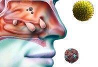 Острый и хронический риносинусит: симптомы и лечение