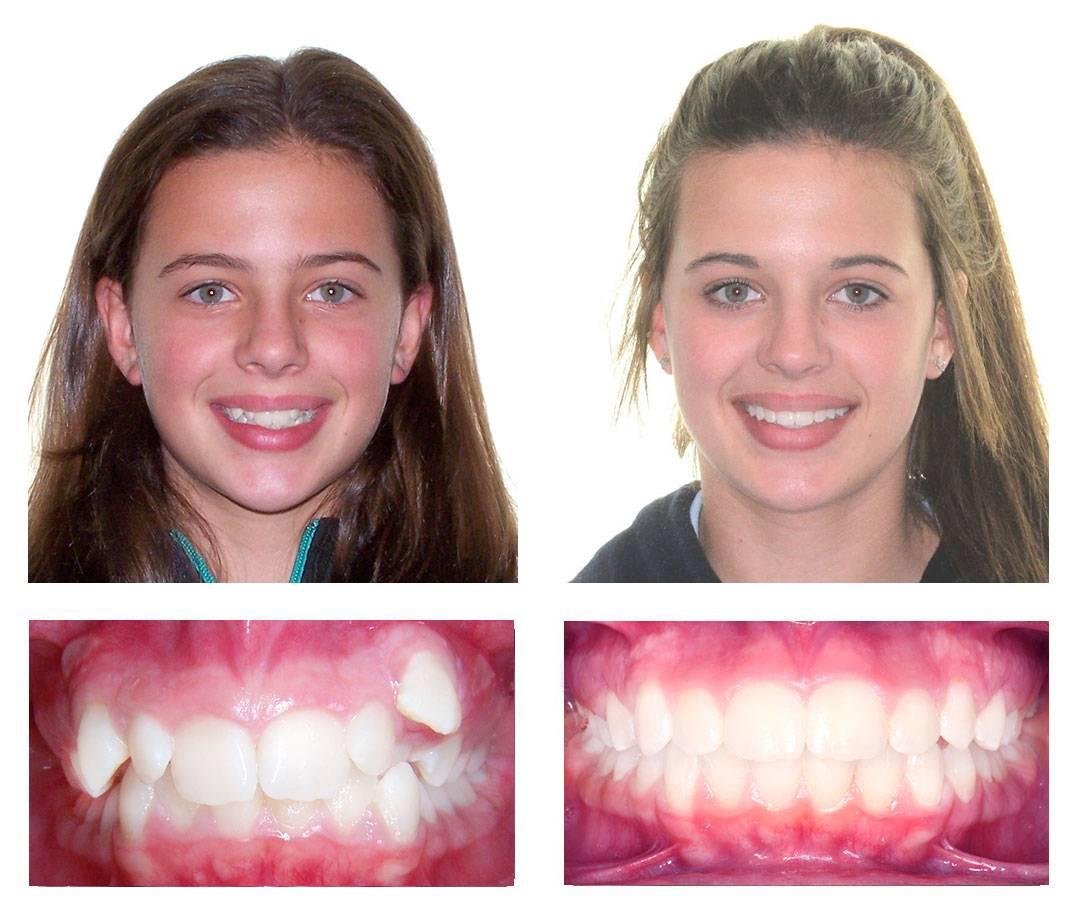 зубы после снятия брекетов