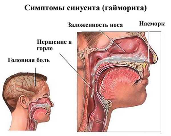 Заложен нос и болит голова: температуры нет