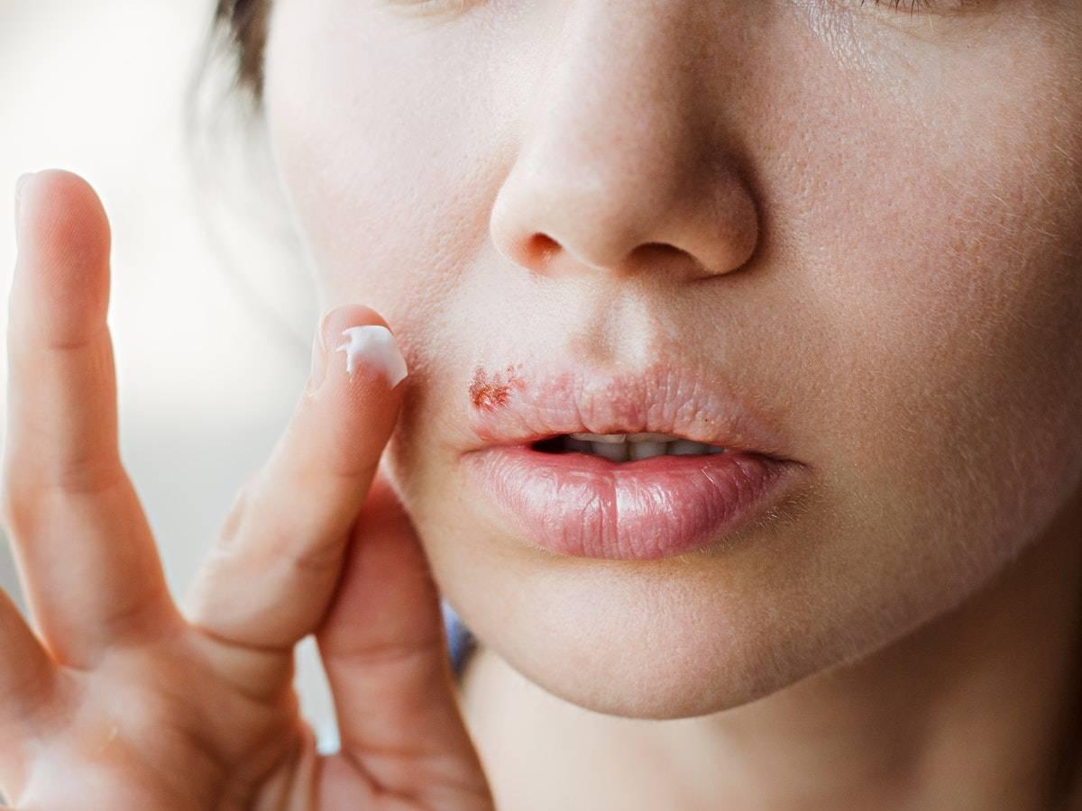 Чем лечить простуду в носу, фото герпеса, симптомы, профилактика