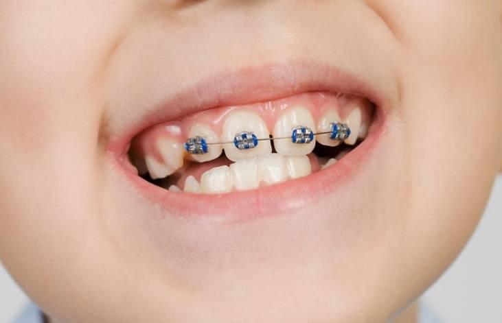 у ребенка растут кривые постоянные зубы