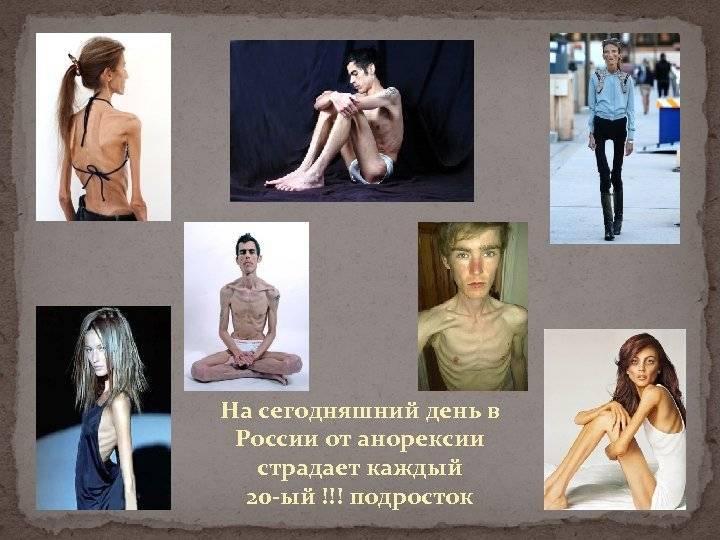 Анорексия - что это? анорексия у мужчин, женщин, детей: причины, симптомы, лечение