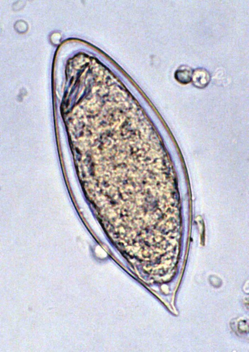 Шистосомоз: симптомы, диагностика, лечение | eurolab | паразитарные болезни