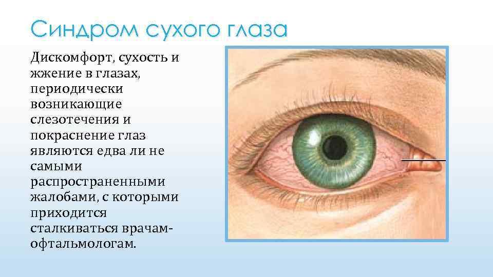 Как лечить синдром сухого глаза дома – 8 рецептов