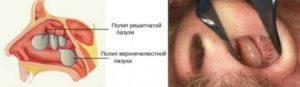 Лечение полипов в носу без операции: препараты, народные средства