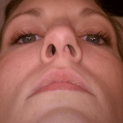 как определить искривление носовой перегородки