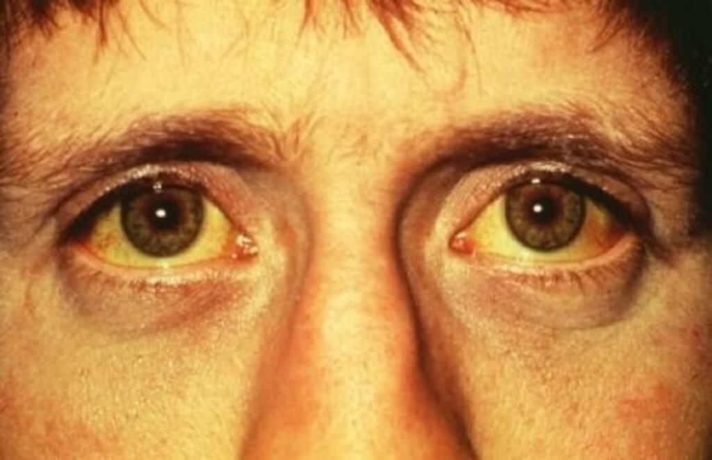 сколько раз болеют желтухой