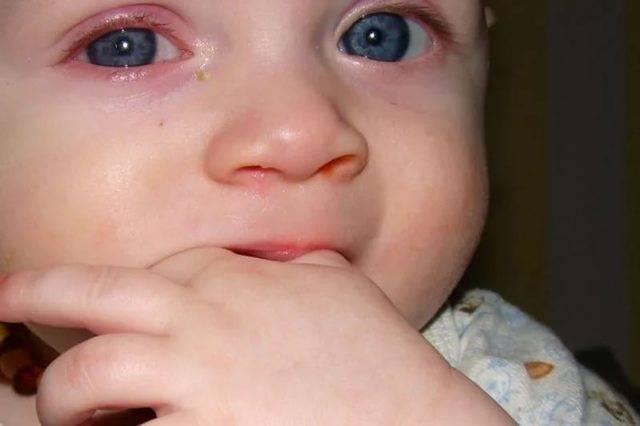 при насморке слезятся глаза что делать