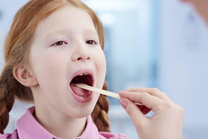Тонзиллит: симптомы у взрослых, фото горла, что это такое, причины