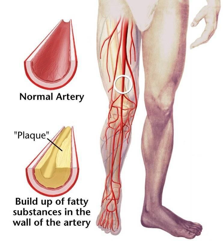 Атеросклероз ног – не приговор: мы обязательно вам поможем! с нашей помощью вы забудете, что такое атеросклероз сосудов ног