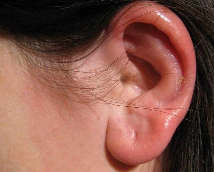 Воспалилась мочка уха от серьги:  популярные вопросы про беременность и ответы на них
