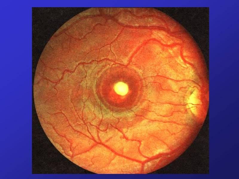 Мне диагностировали цхрд глаза. что это и как лечить?