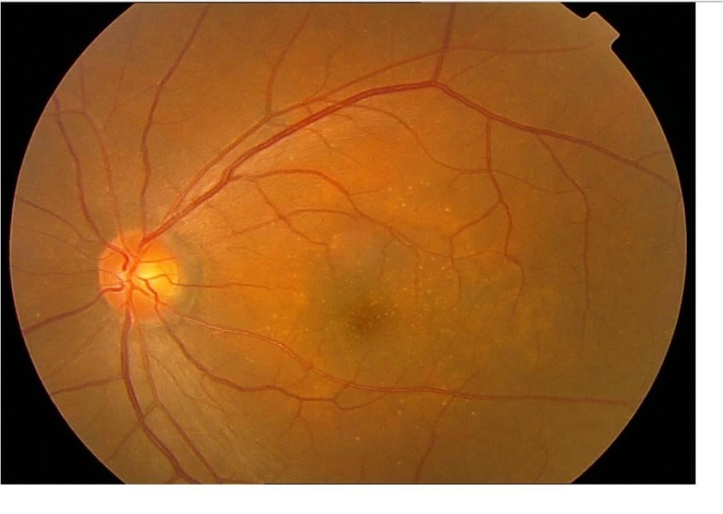 ангиосклероз сетчатки обоих глаз