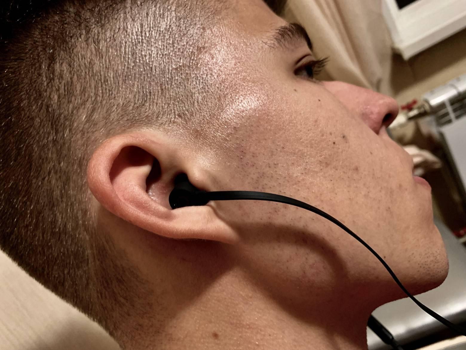 Болят уши от наушников: причины и что делать?