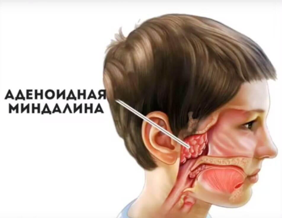 Аденоиды 1 степени у детей: лечение, отзывы, фото, удаление, симптомы