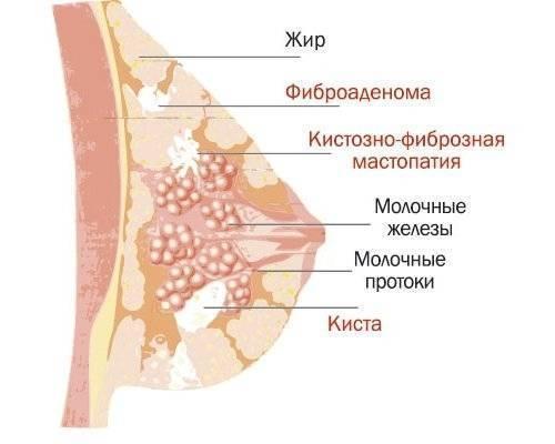 болит грудь на 15 день цикла