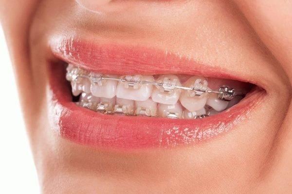 Влияние мрт для пациентов с брекетами зубов