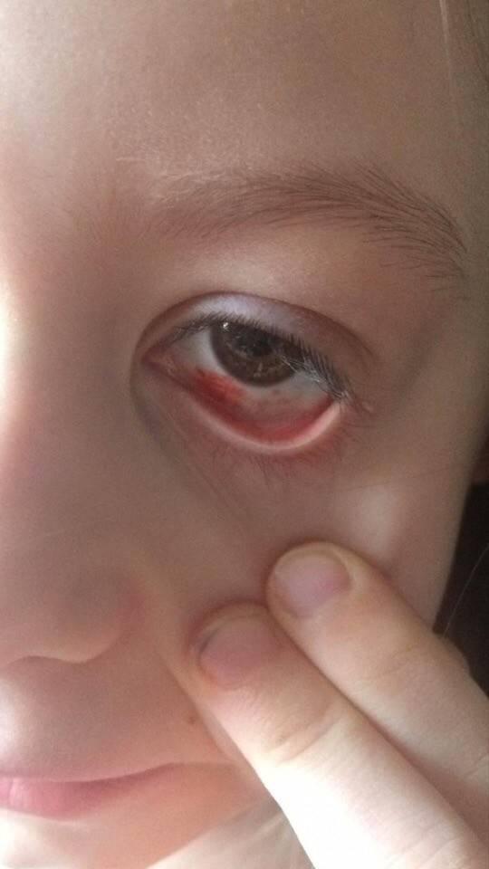 красное пятно на глазном яблоке