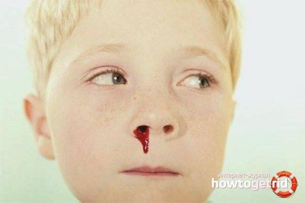 Причины соплей с кровью и методы лечения