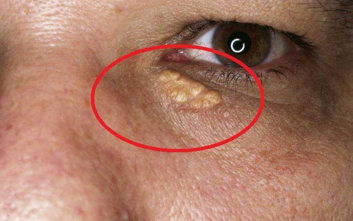 Как убрать холестериновые бляшки под глазами