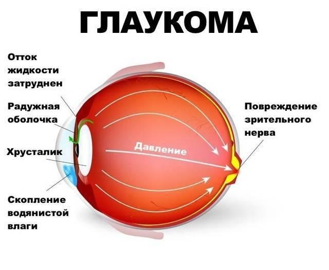 Глаукома – лечение эффективными народными средствами