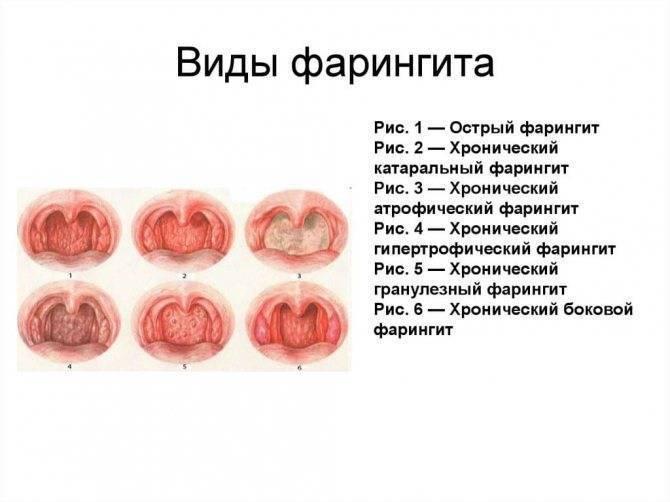 герпетический фарингит