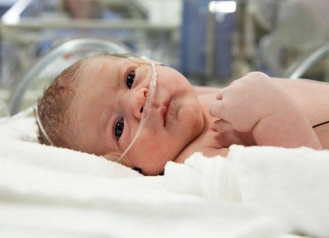 Лечение инспираторного и врожденного стридора гортани у новорожденных