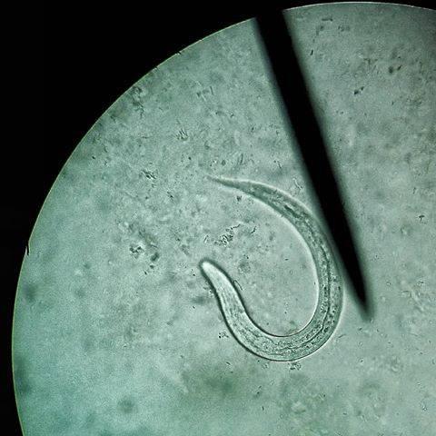 Стронгилоидоз (кишечная угрица): что это такое, причины, симптомы, лечение, диагностика, профилактика